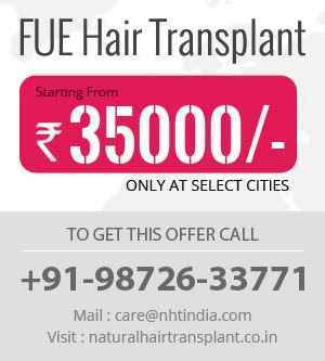 Hair Transplant in Amreli 9872633771