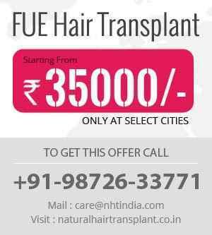 Hair transplant in Banswara 9872633771