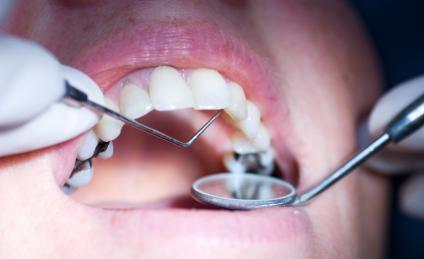Best Dental Clinics in Kochi