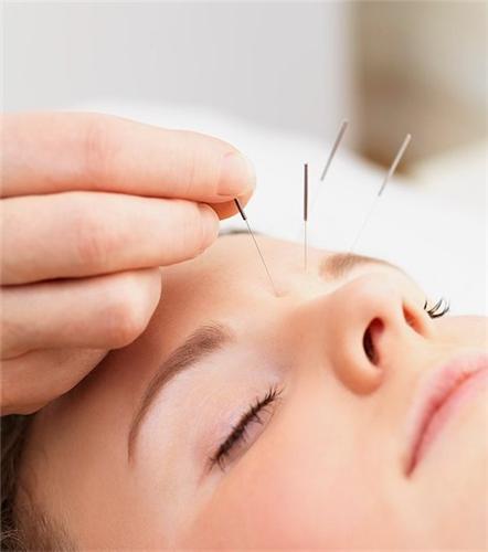 Acupuncture Center in Veraval