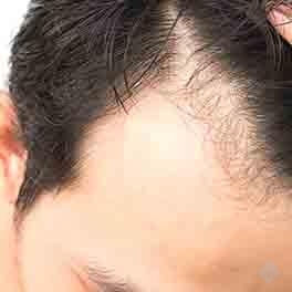 Hair-Transplant-1-4