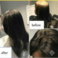 Hair Replacement For Female