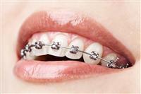 Kashipur Dentist