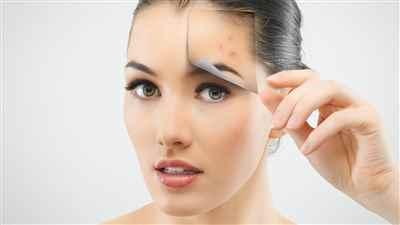 Skin Cosmetic Laser