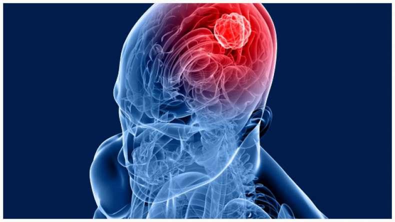 Brain-Tumour-Treatment-newsx