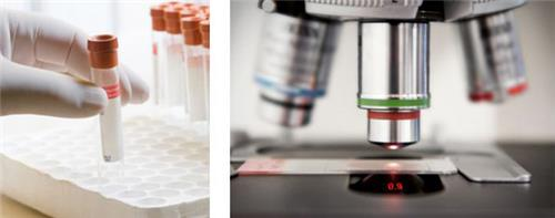 Pathology Labs in Karnal
