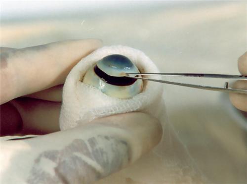Eye banks in Mangalore