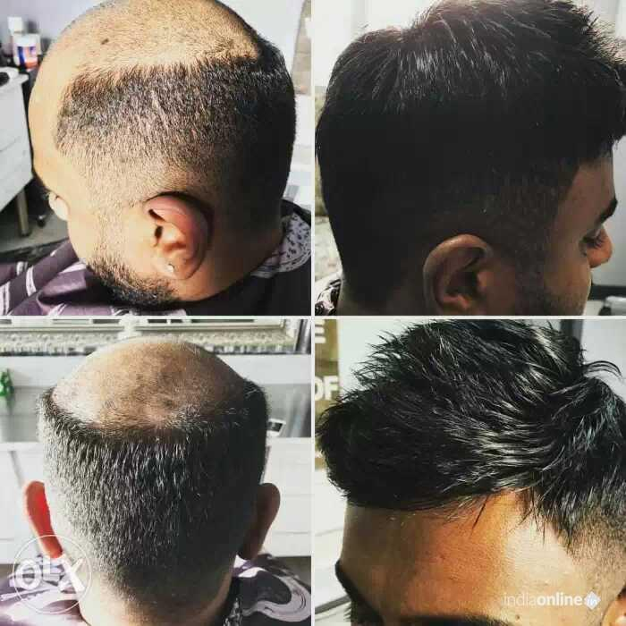 Hair Replacement For Men