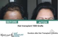 Rejuvenate Hair Transpalnt Centre
