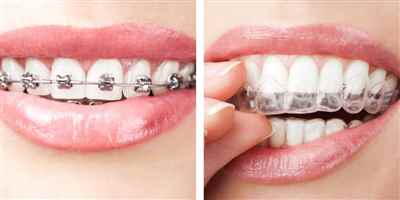 Braces and Roots Dental clinic