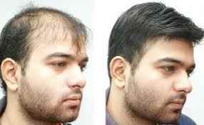 Best dermatologist in gurgaon