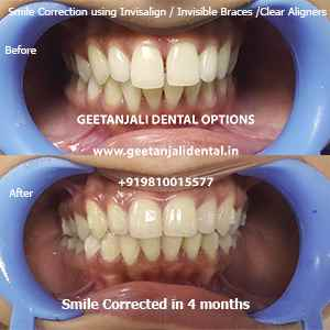 Geetanjali Dental Options
