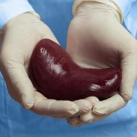 Kidney Transplant Hospital