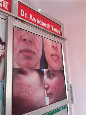 Dr. Awadhesh Yadav Clinic